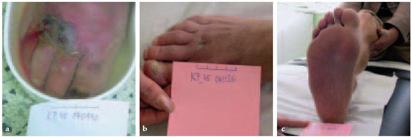a, b, c. Aplikace roztoku Dermacynu v léčbě flegmóny nohy diabetika s píštělemi z plosky na dorzum nohy. Rána vznikla po píchnutí bodliny mořského ježka do plosky.