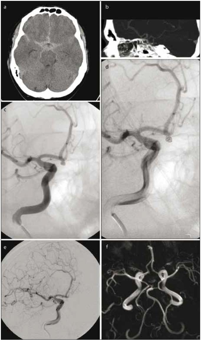 51letý muž se subarachnoidálním krvácením před 3 dny. Vzbuditelný, odpovídá jednoslovně. Obr. 1a) CT prokazuje symetrické rozložení krve v bazálních cisternách. Obr. 1b) CT angiografie zobrazila 3 mm velké aneuryzma a. communicans anterior směřující kaudálně. Obr. 1c) Provedená angiografie detailně zobrazila aneuryzma. Nemocný byl uveden do celkové anestezie. Obr. 1d) Mikrokatétrem zavedena první spirála. Obr. 1e) Kontrolní angiografie potvrzuje vyloučení vaku aneuryzmatu pomocí tří spirál. Celková doba anestezie nepřesáhla 60 minut. Obr. 1f) Kontrolní MR angiografie po 6 měsících prokazuje trvalý plný uzávěr aneuryzmatu.