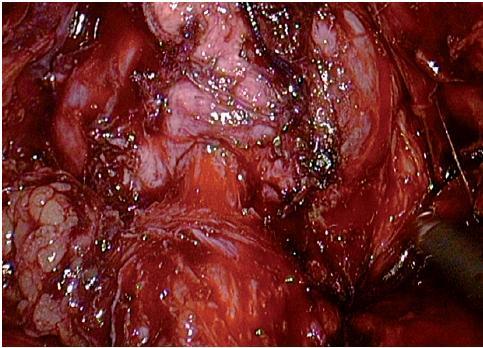 Hrdlo šetřící oddělení měchýře od prostaty Fig. 5. Bladder neck sparing separation prostate from bladder