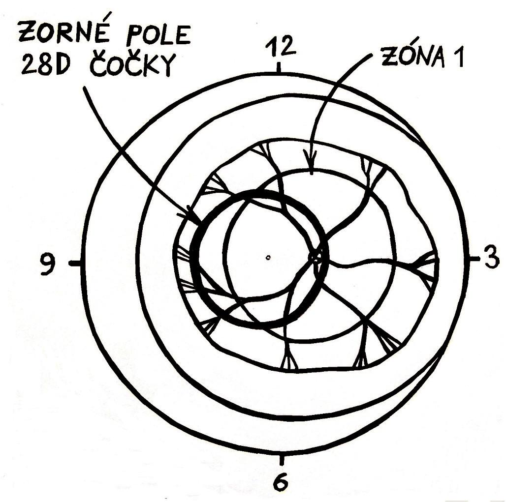 Zorné pole 28 D čočky: Máme-li v okraji zorného pole 28D čočky nazální okraj terče zrakového nervu a vidíme-li současně v celé ploše tohoto zorného pole cévy, potom nemůže jít o ROP zóny 1