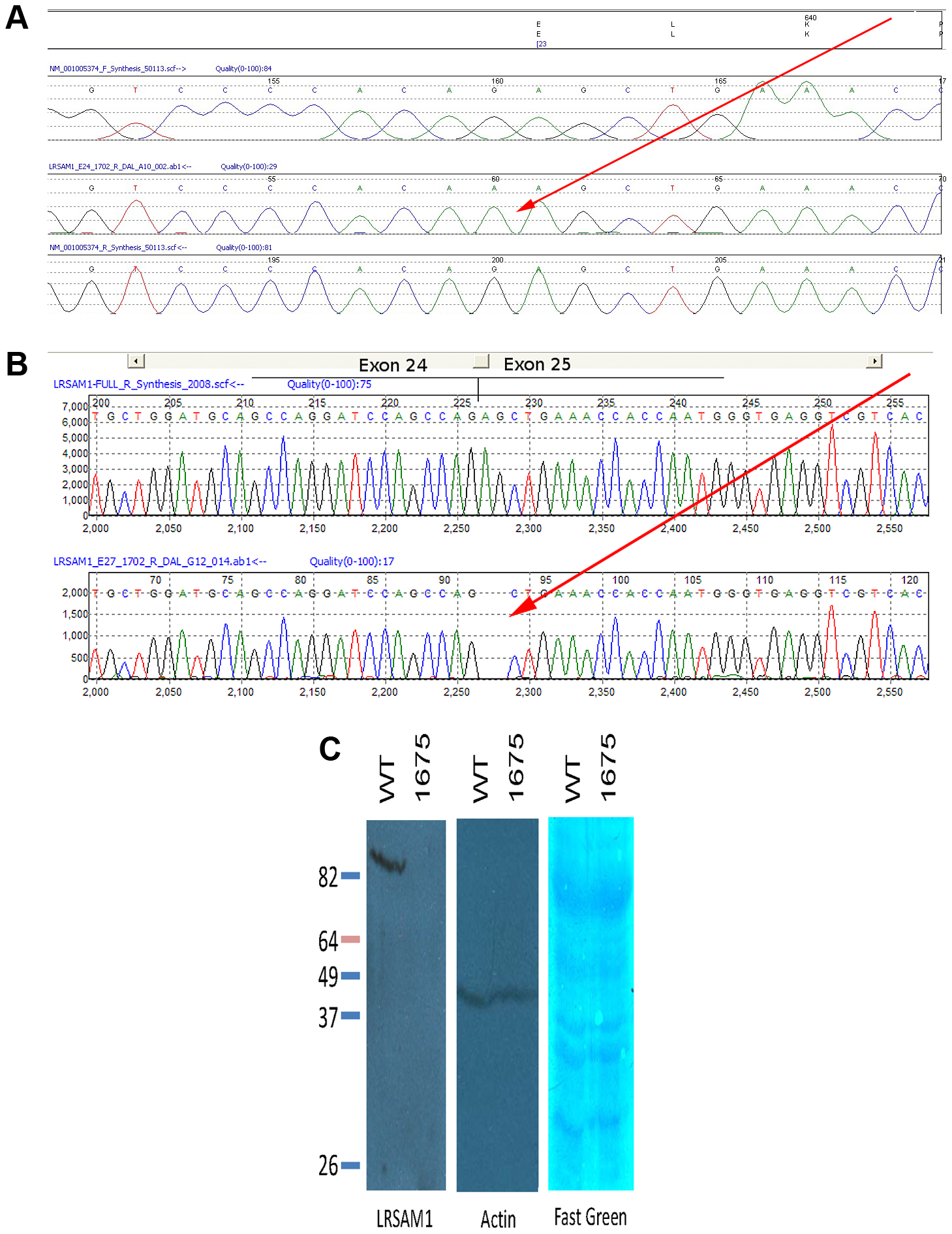 Sequence showing mutation in genomic and cDNA of affected patient.