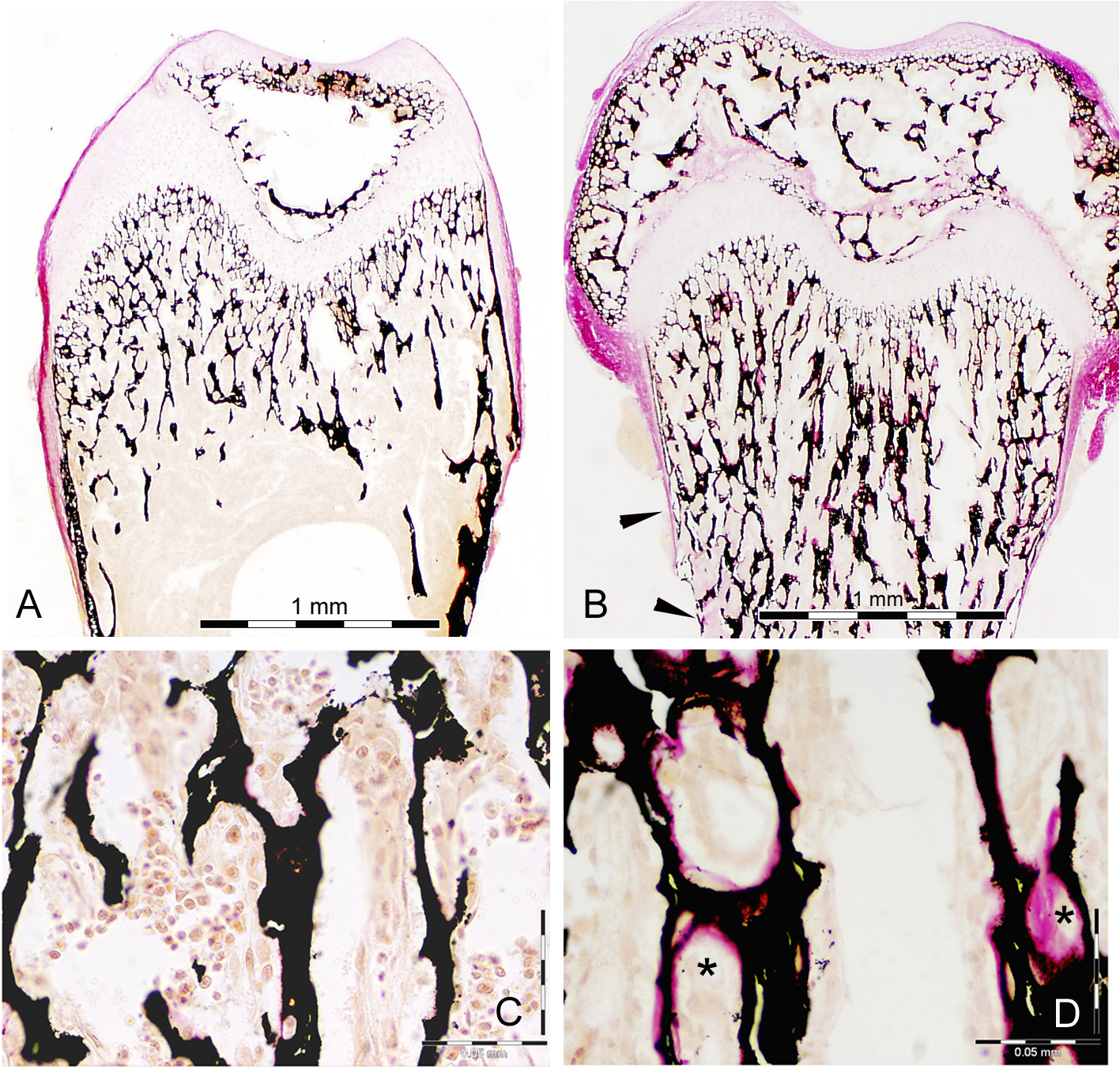 Histology of bone from WT and Snx10 KD mice.