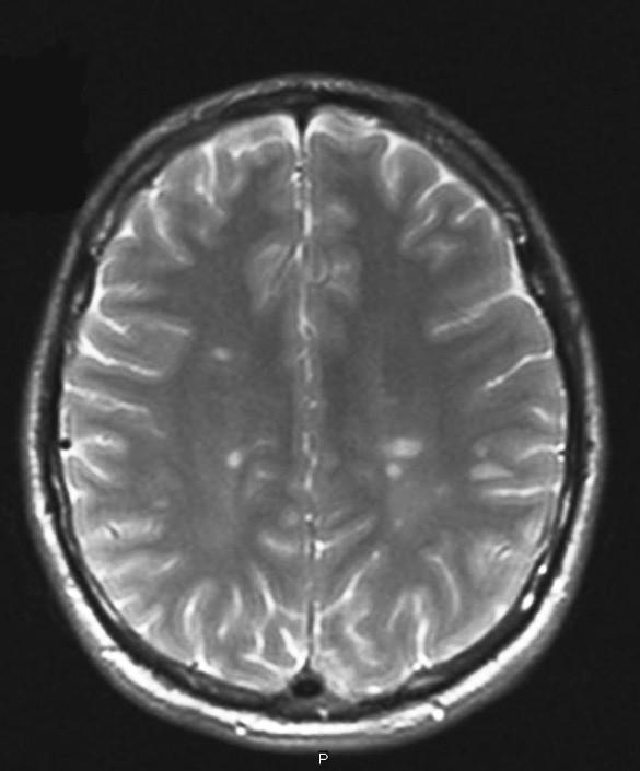 Typický MRI nález u RS. (Zapůjčeno z oddělení magnetické rezonance Nemocnice na Homolce.)