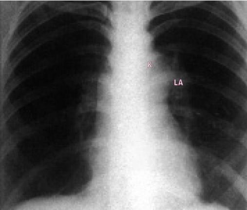 Skiagram u lehké stenózy ukazuje poststentickou dilataci plicnice a prominující levou plicní arterii.