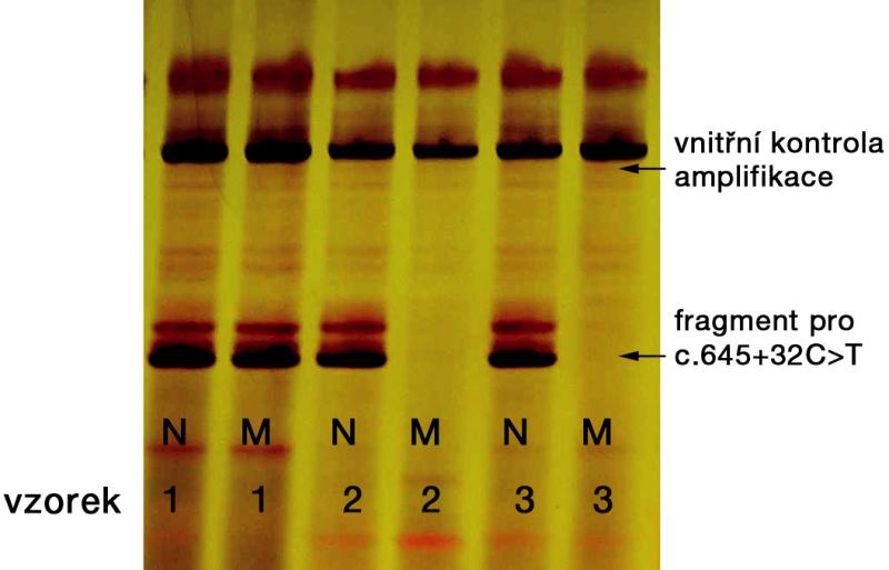 Detekce substituce c.645+32C>T pomocí alelické specifické polymerázové řetězové reakce, fragmenty na 5% polyakrylamidovém gelu po elektroforéze N – normální alela, M – mutovaná alela vzorek 1: heterozygot pro substituci c.645+32C>T (amplifikována jak normální, tak mutovaná alela) vzorky 2 a 3: substituce c.645+32C>T nepřítomna (amplifikována jen normální alela)