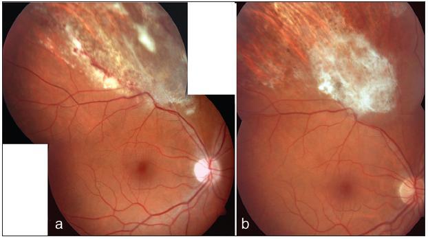 Cytomegalovirová retinitida u pacienta s ulcerózní kolitidou. Ložisko retinitidy s aktivními okraji a hemoragiemi (a). Jizva po přeléčení virostatiky (b)