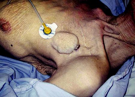 Dekubitus s výhřezem elektrody u kachektické pacientky