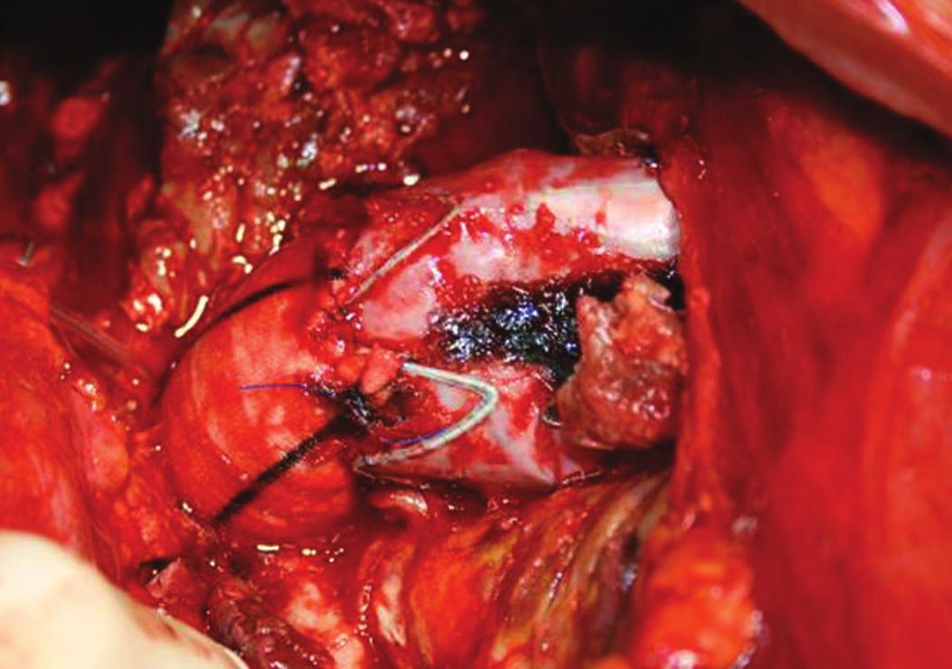 Resekce proximální části stentgraftu s využitím jeho distální části Fig. 4: A resection of the proximal stentgraft using its distal portion