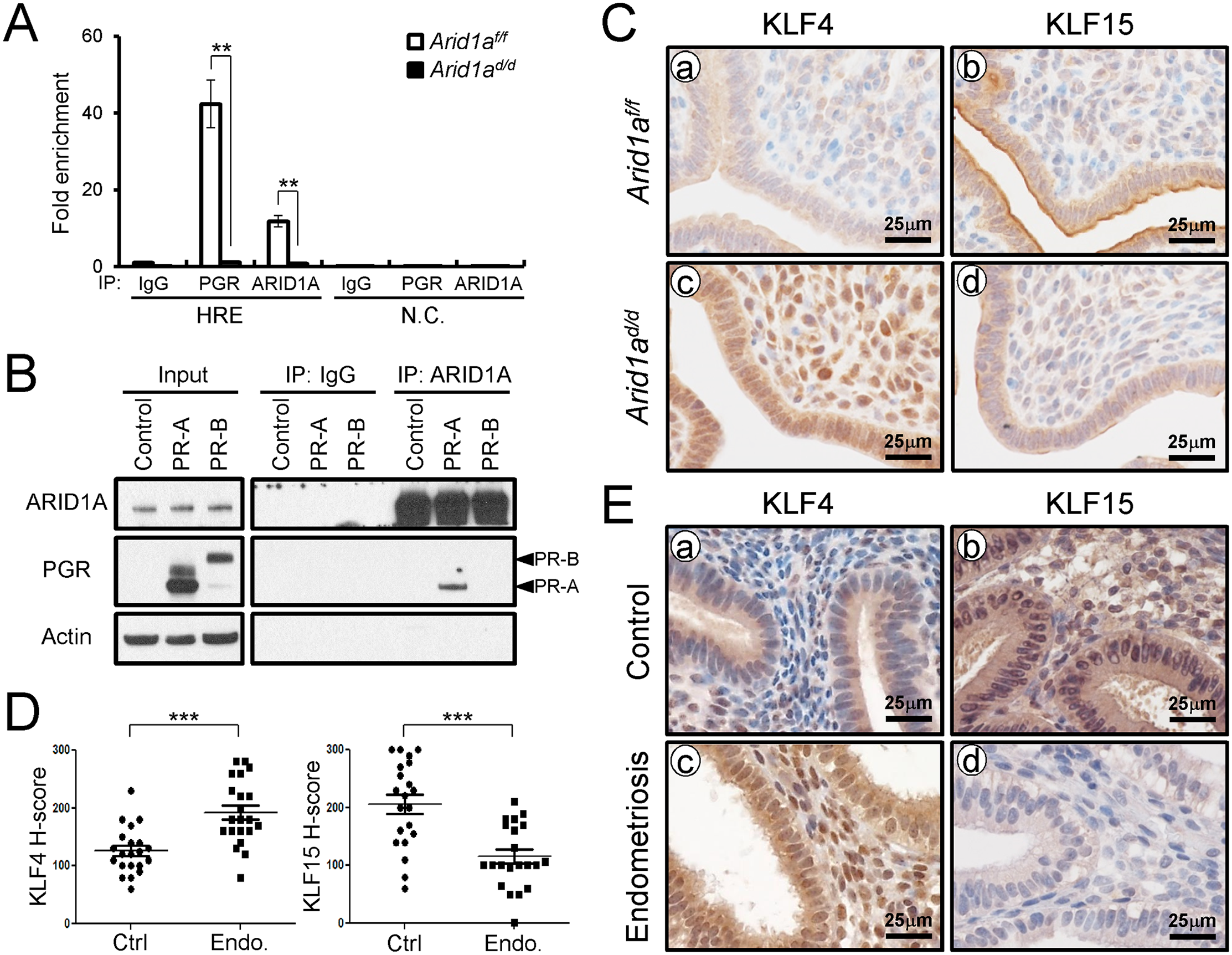 ARID1A regulates epithelial proliferation via modulating KLF15 expression with PGR (A) ChIP assay performed with uterine chromatin isolated <i>Arid1a</i><sup><i>f/f</i></sup> and <i>Arid1a</i><sup><i>d/d</i></sup> mice at 3.5 dpc using IgG, PGR, and ARID1A antibodies followed by qPCR.