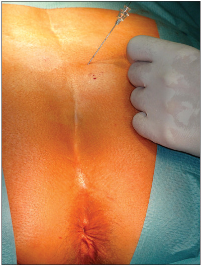 Perkutánní vyšetření nervu stimulační jehlou Fig. 1. Percutaneous examination of the nerve with a stimulation needle