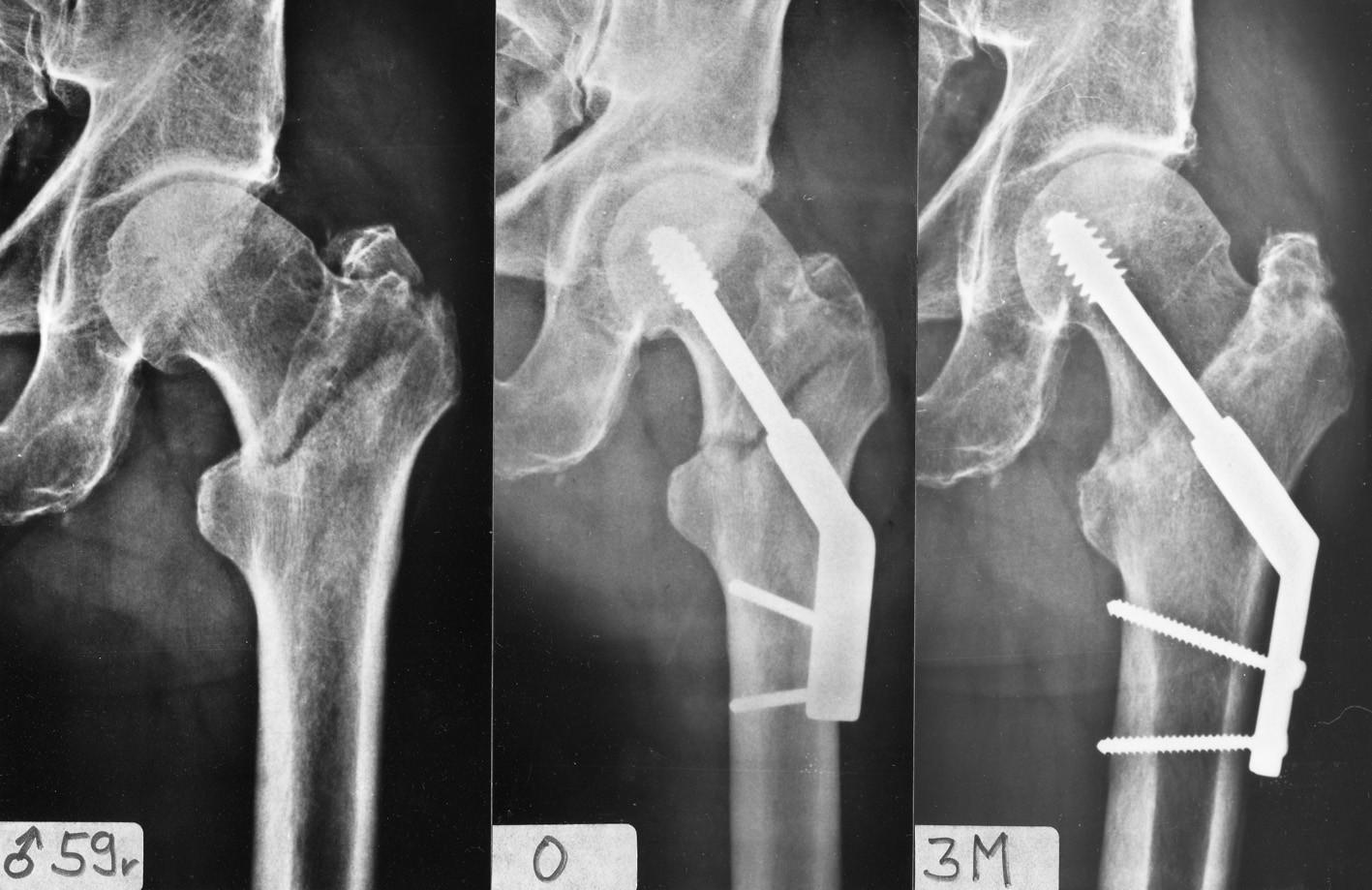 Osteosyntéza pertrochanterické zlomeniny pomocí DHS s 2otvorovou dlahou: a – stabilní pertrochanterická zlomenina; b – rtg po operaci; c – zhojení zlomeniny 3 měsíce po operaci. Fig. 3: Internal fixation of a pertrochanteric fracture by DHS with a 2-hole plate: a – a stable pertrochanteric fracture; b – postoperative radiograph; c – fracture healed 3 months after operation.