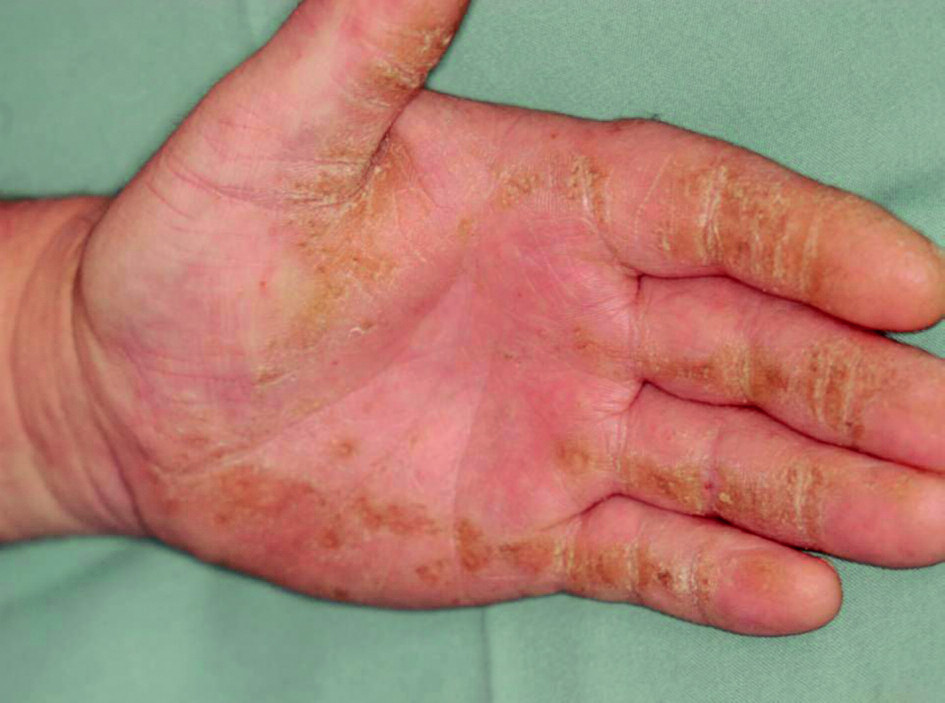 Obr. 4b. Palmární hyperkeratóza u: b) jeho dědečka.