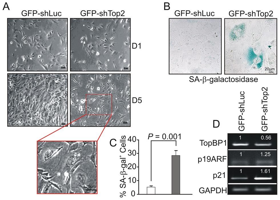 AAD mutation induces premature cellular senescence.