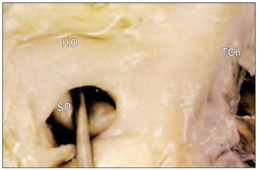Foramen ovale. Sonda proniká mezi klopou chlopně a okrajem fossa ovalis. Po vytažení sondy cíp defekt uzavře.