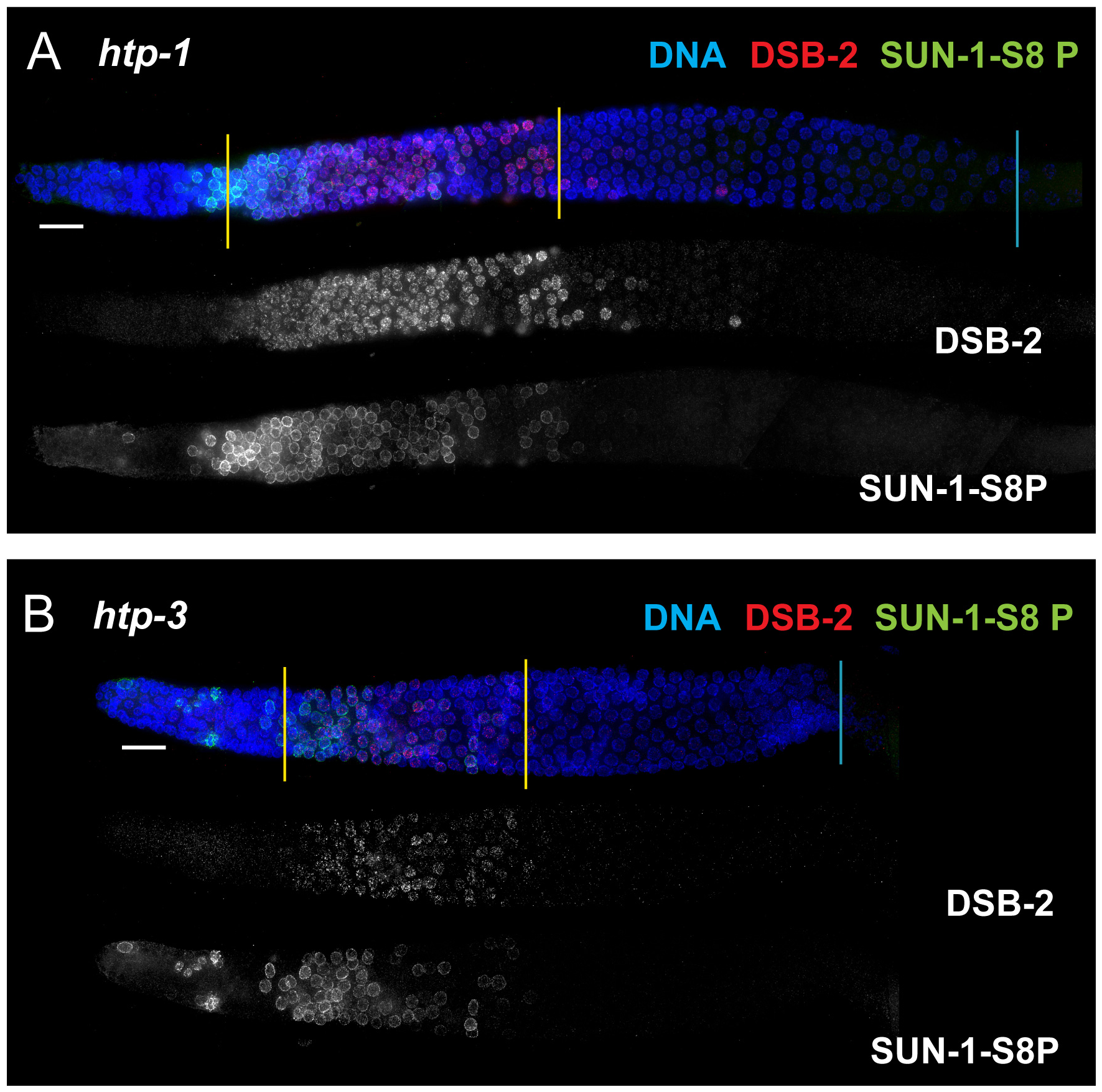 DSB-2 and SUN-1 S8P persistence requires axis proteins HTP-1 and HTP-3.