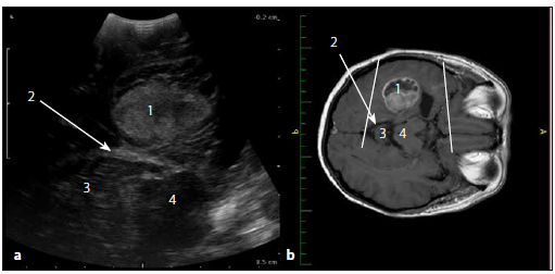 Sonografický obraz a odpovídající upravený MR T1W obraz glioblastomu levého temporálního laloku.