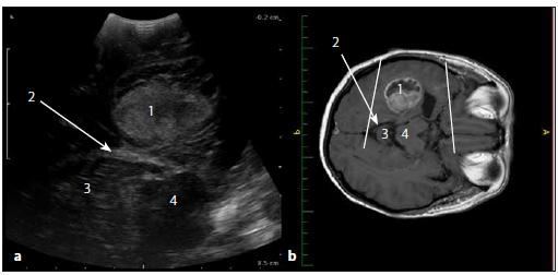 Sonografický obraz a odpovídající upravený MR T1W obraz glioblastomu levého temporálního laloku. Fig. 8. Ultrasound image and corresponding adjusted MRI T1W image of the temporal lobe glioblastoma.