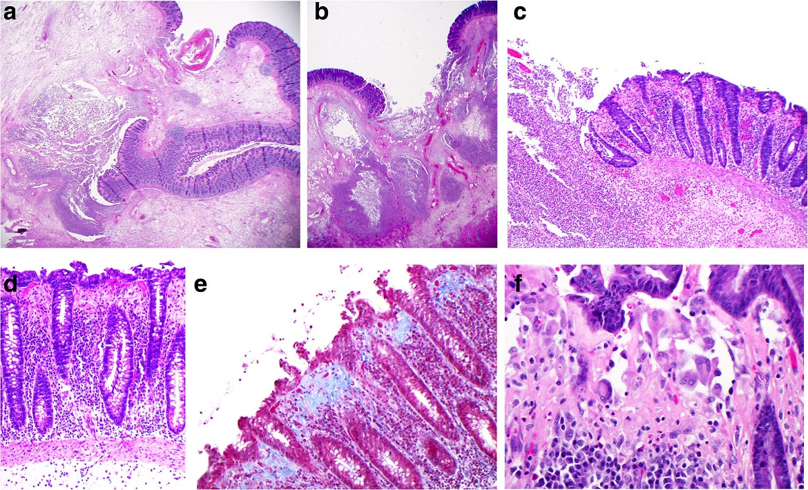 Microscopy of the resected colon: a and b Low power views (×12.5) of ulcerated bowel with abscess formation and transmural necrosis. Even at this low magnification the non-ulcerated mucosa shows clear evidence of collagenous colitis. c Medium power view (×100) of mucosal ulceration (left) and severe collagenous colitis (right). d High power view (×200) of the mucosa showing the features of collagenous colitis: a markedly thickened subepithelial collagen layer measuring up to 100 μm, surface epithelial flattening with loss of goblet cells, separation of the epithelium from the lamina propria, increased intraepithelial and lamina propria chronic inflammatory cells. e High power view (×200), Masson's trichrome stain, in which the thickened subepithelial collagen layer is stained blue. f Very high power view (×400) of multinucleated histiocytes