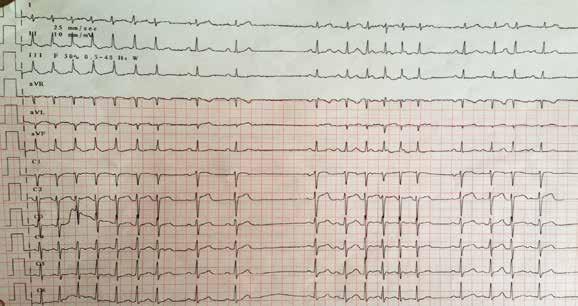 Vstupní EKG s SVT s rychlou komorovou odezvou