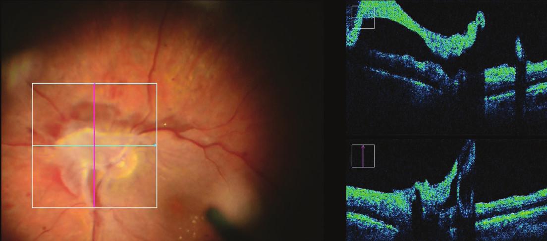 iOCT upřesňuje anatomické uspořádání proliferace při terči zrakového nervu
