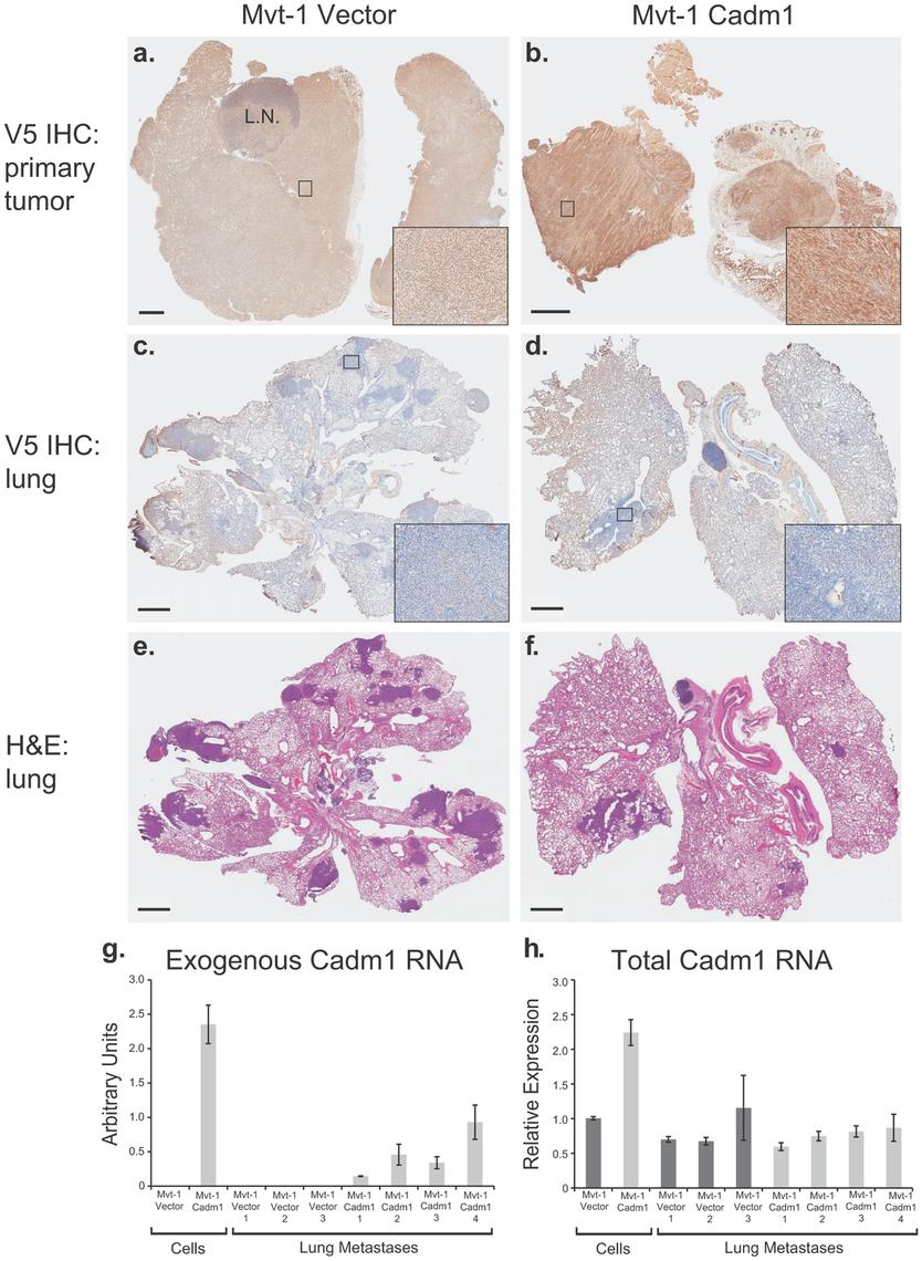 Pulmonary metastases of Mvt-1/<i>Cadm1</i> cells express attenuated levels of <i>Cadm1</i>.