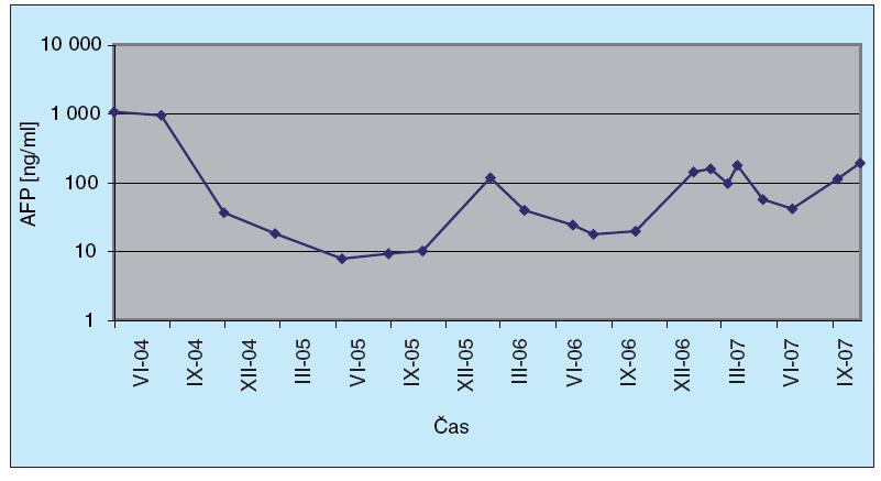 Dynamika AFP markeru u pacienta č. 4