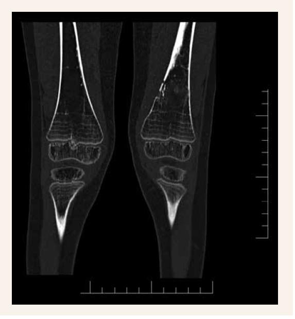 Osteolytické ložisko mediálnej hrany distálnej diametafýzy ľavého femoru