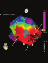 CartoXP – voltážová mapa oblasti hrotu a bázy ľavej komory.  Sivé zóny – jazvovité tkanivo s minimálnou amplitúdou. Šípky označujú oblasti aplikácie RF ablačnej energie (červené body). Medzi dvoma oblasťami fibrózy je viditeľný kanál tkaniva so spomaleným vedením, ktorý je potrebné abláciou eliminovať – čierna línia (archív autorov).
