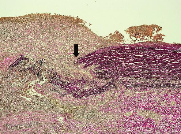 V blízkosti perforácie aorty bolo izolované ložisko segmentálneho rozpadu elastických vlákien (šípka) (hematoxylín eozín, zväčšenie 40x).