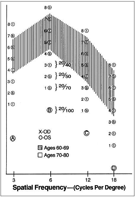 Graf na zaznamenávanie hodnôt KC