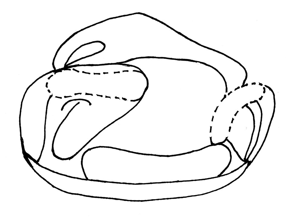 Fig. 3. Diagram of the surgery slices according to Tennison's modified method – view of the buccal cavity