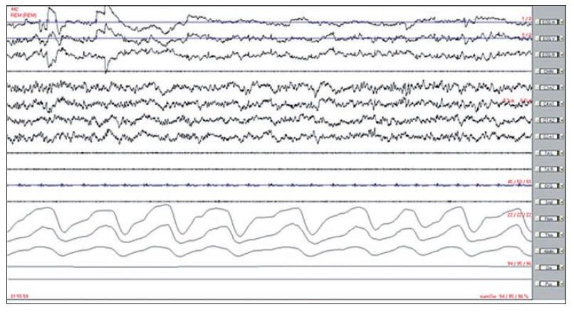 REM spánek u zdravého člověka – polysomnografický záznam 30 s.