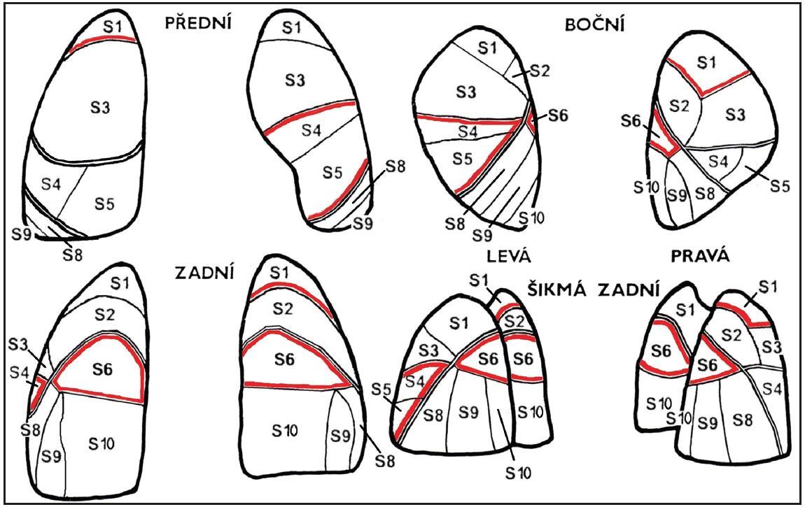 Hranice laloků a dílců (segmentů) na planárních scintigramech plic. Dvojitá čára - obvyklé hranice laloků, dvojitá červeno-černá čára - hranice atypického laloku odděleného štěrbinou. Tento náčrt i oba následující byly vytvořeny za využití literatury <sup>1, 4, 5, 6, 7</sup>, zdrojů z internetu a vlastního pozorování nálezů.
