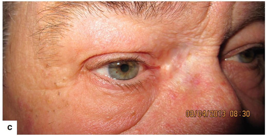 Pacient s mikroskopicky pozitívnym resekčným okrajom po excízii bazaliómu mediálneho kútika pravého oka a) 6 mesiacov po brachyterapii pretrváva erytém kože v ožiarenej oblasti b) 22 mesiacov po ukončení brachyterapie c) 29 mesiacov po ukončení brachyterapiea