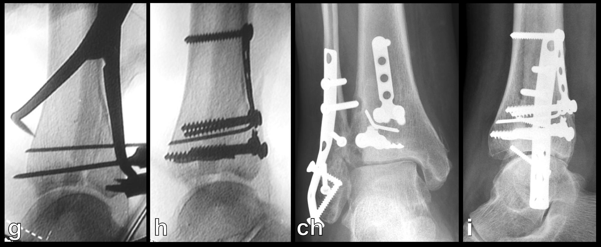 Osteosyntéza odlomené zadní hrany tibie – Typ 2 (posteromediální) a, b, – rtg snímky ukazující zlomeninu fibuly Weber B, odlomení zadní hrany nesoucí téměř polovinu kloubní plochy distální tibie a subluxaci talu dorzálně, c – transverzální CT řez, d – sagitální CT řez, e – 3D CT rekonstrukce, dorzální pohled, f – 3D CT rekonstrukce, mediální pohled, z rekonstrukcí je patrné, že je odlomena zadní hrana až k sulcus malleolaris a laterálně dorzální polovina incisury tibie, g, h – peroperační rtg snímky ukazují postupnou rekonstrucki distální tibie, ch, i – rtg snímky po operaci