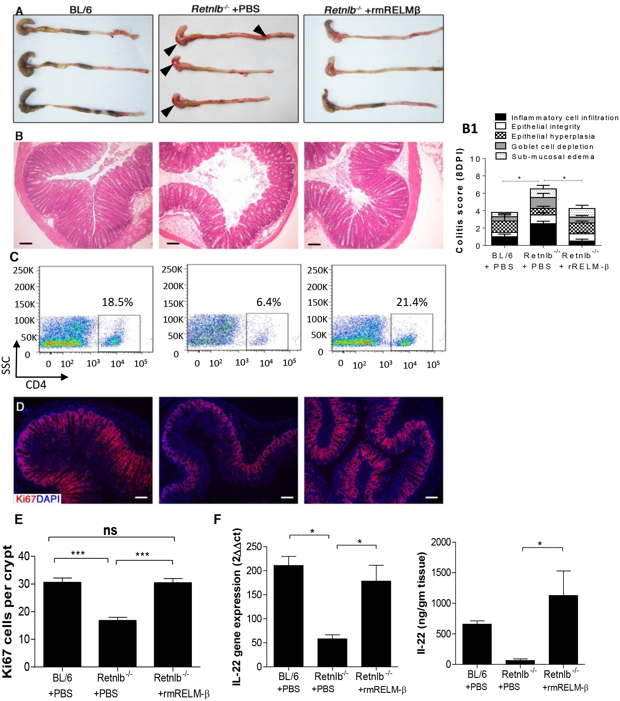 Reconstitution with recombinant RELM-β protects infected <i>Retnlb</i><sup><i>-/-</i></sup> mice.