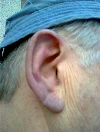 Cyanotický ušní boltec našeho pacienta vystaveného únorovému počasí. Aglutinované erytrocyty zablokují průtok krve, dochází k nedostatku kyslíku a vzniká cyanóza. Později mohou nastoupit i trofické změny.