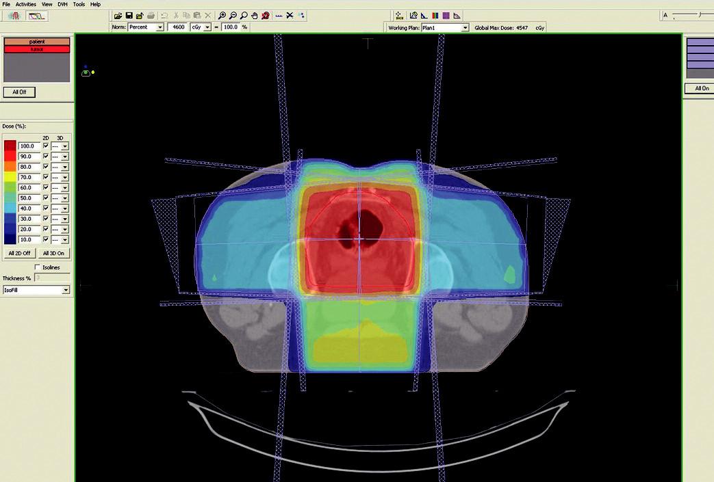 Plánovací CT vyšetření – předoperační ozáření karcinomu rekta cT3 NO MO – transverzální rovina