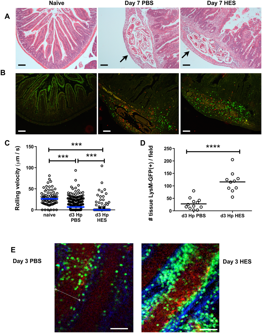 HES vaccination promotes extensive myeloid cell extravasation and accumulation around site of larval invasion.