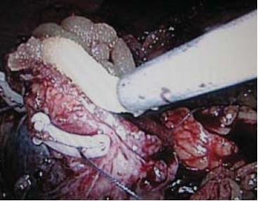 """Aplikace tkáňového lepidla (FloSeal) na resekční plochu. Hemostatické stehy na spodině fixované přes polymerové svorky (""""sliding–clip renorrhaphy"""")."""