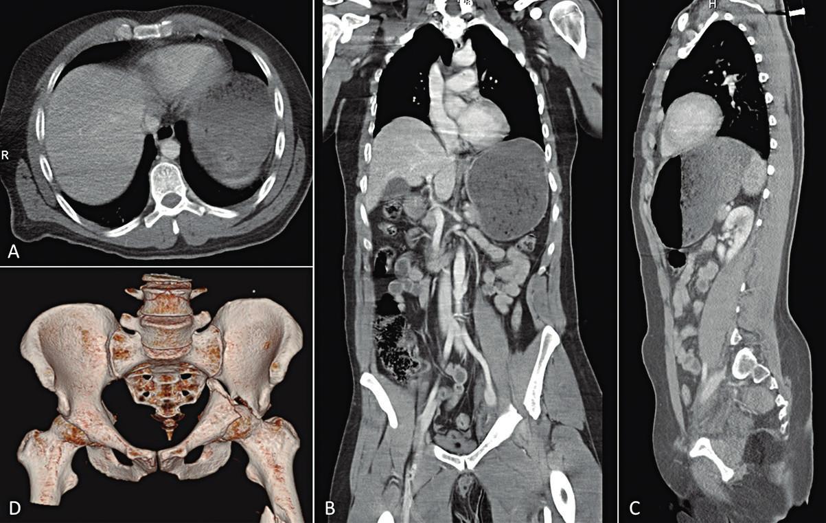 Vstupní CT trupu s KL i.v.