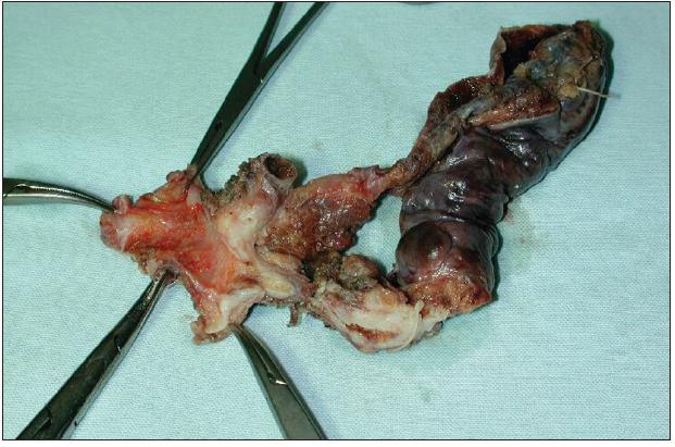 Resekát extrahepatálních žlučovodů a žlučníku s Klatskinovým tumorem sklerotizujícího typu klasifikace Bismuth I Fig. 8: En bloc resection of extrahepatic biliary duct and cholecystectomy for sclerosing type of Klatskin tumor Bismuth I
