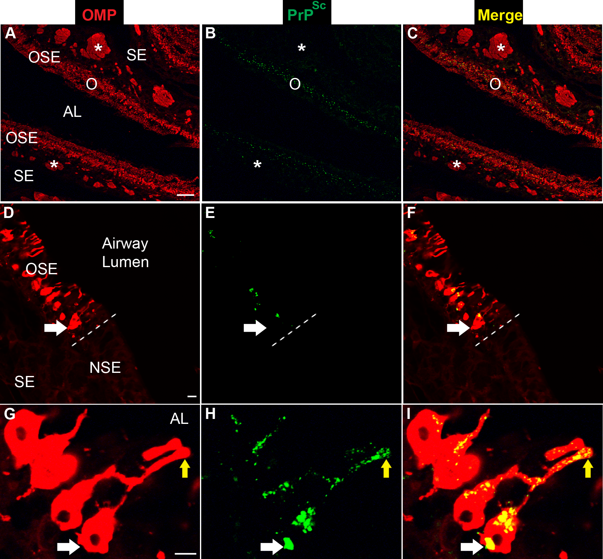 Distribution of PrP<sup>Sc</sup> in olfactory sensory epithelium following intra-olfactory bulb inoculation of the HY TME agent.