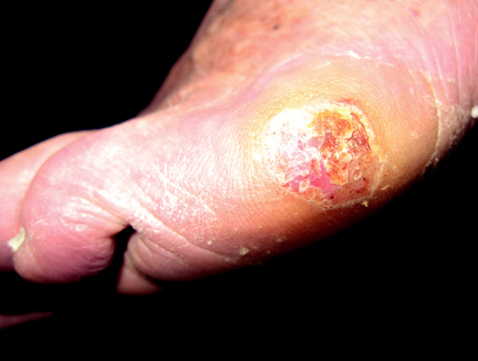 Akrolentiginózní melanom, laterální strana levé nohy.