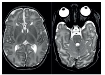 MR patologicky vysoký signál v zadních raménkách capsula interna na T2-vážených obrazech. Fig. 3. MRI pathologically high signal in posterior bridge capsula interna in T2 high weight scan.