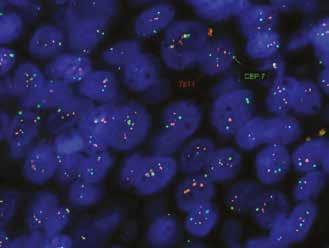 Polysomie chromozomu 7, použitá sonda KREATECH Diagnostic, ON EGFR, Her-1 (7p11)/SE 7