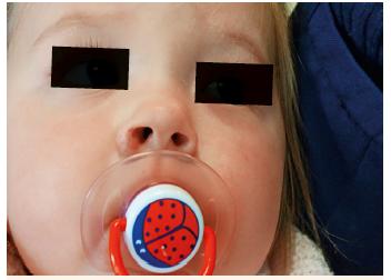 Obr. 9D. Hemangiom smíšený na křídle nosním po 8 měsících léčby. Fig. 9D. Mixed hemangioma on nasal wings after eight months treatment.