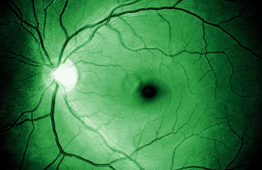 Vrstva nervových vláken zdravého oka