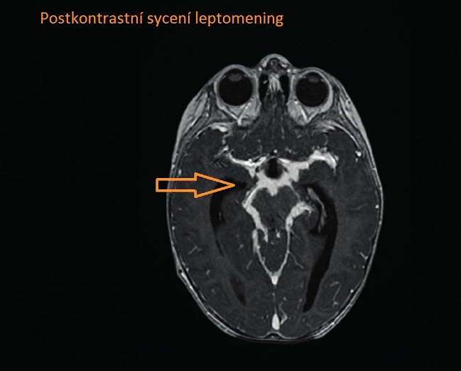 Postkontrastní sycení leptomening.