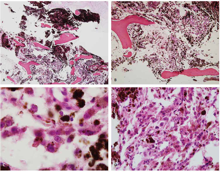 Histologically, the ovoid shaped tumour cells have replaced the marrow cavity of the vertebral body (hematoxylin and eosin, × 100) (A). Small foci of tumour cells are found in abundant pigments (hematoxylin and eosin, × 200) (B). The tumour cells have a prominent intranuclear pseudoinclusion with abundant melanin and hemosiderin (hematoxylin and eosin, × 1000) (C). Lung biopsy shows nests of ovoid shaped tumour cells and melanin, consistent with metastatic melanotic schwannoma (hematoxylin and eosin, × 400) (D).